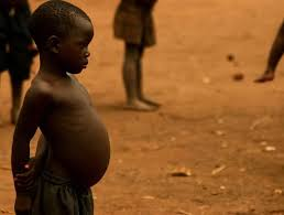 Picture of a child with Kwashiorkor